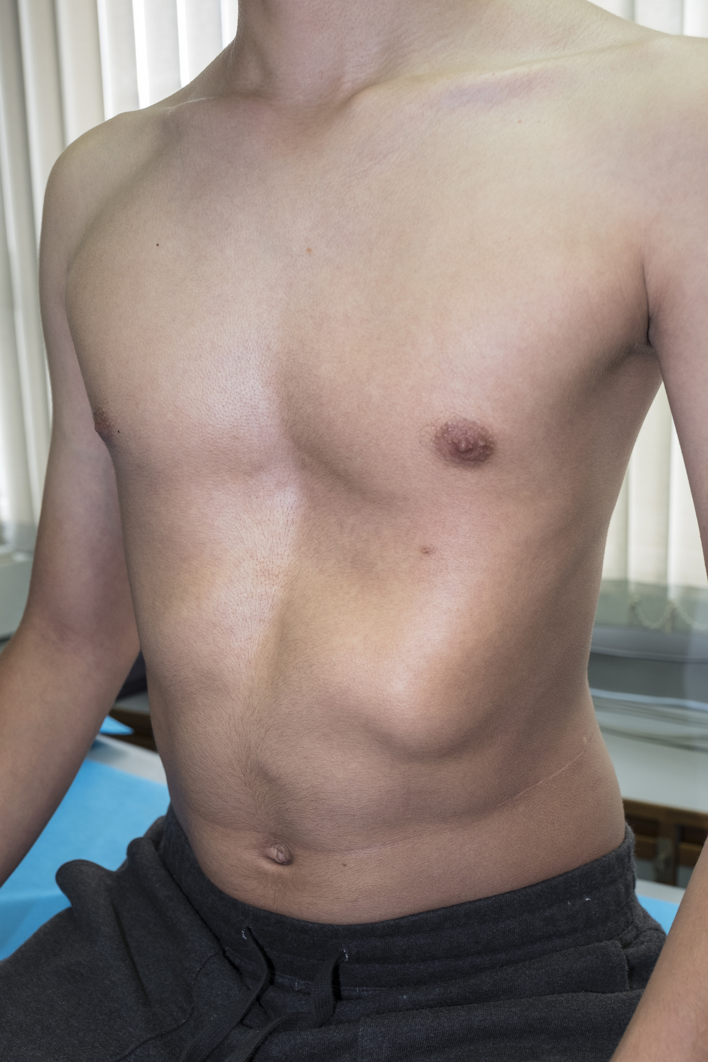 How To Get Relieve PectusExcavatum Without Surgery?